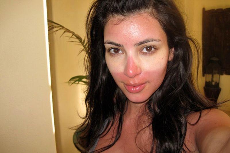 kim-kardashian-sunburn