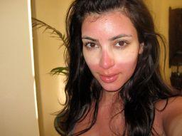 http://hitparades.de/media/novembre%202016/kim-kardashian-sunburn.jpg
